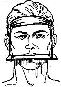фиксация верхней челюсти