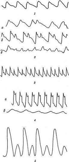 Графическая регистрация пульса