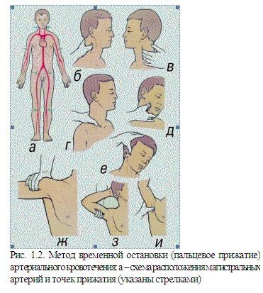 метод остановки кровотечения