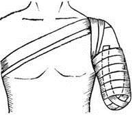 Возвращающаяся повязка на культю плеча