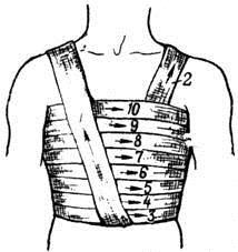 Спиральная повязка груди