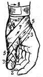Колосовидная повязка на большой палец кисти