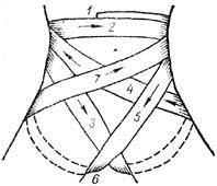 Колосовидная повязка на промежность