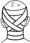 Циркулярная повязка на шею