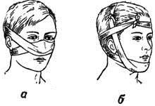 Пращевидная повязка носа