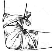 Косыночная повязка на область локтевого сустава