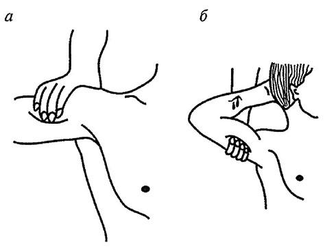 Прижатие плечевой артерии