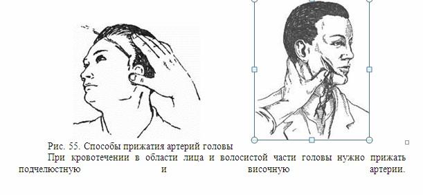 Прижатие артерии головы