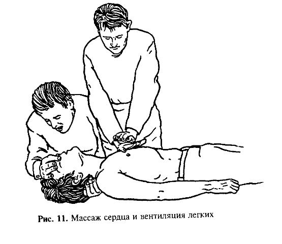 Выполнение сердечно - лёгочной реанимации двумя спасателями