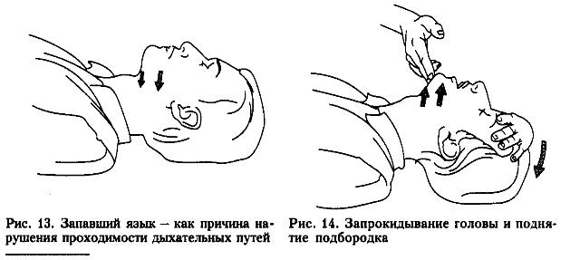 Запрокидывание головы и поднятие подбородка
