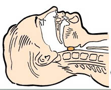 Инородное тело в дыхательных путях