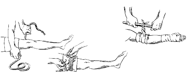 Этапы наложения жгута