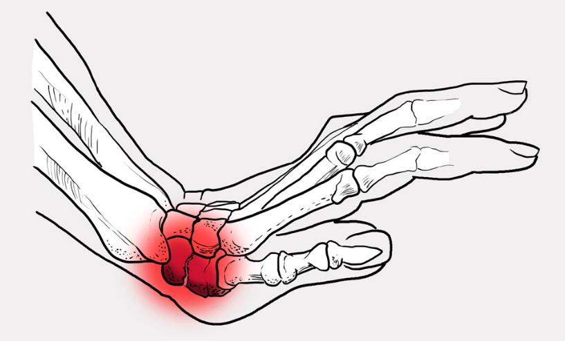 Перелом костей кисти
