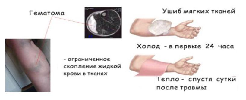 Ушиб мягких тканей