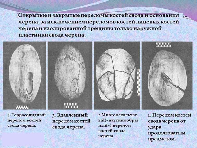 Перелом основания свода черепа