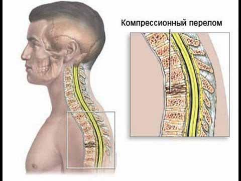 Перелом тела позвонка