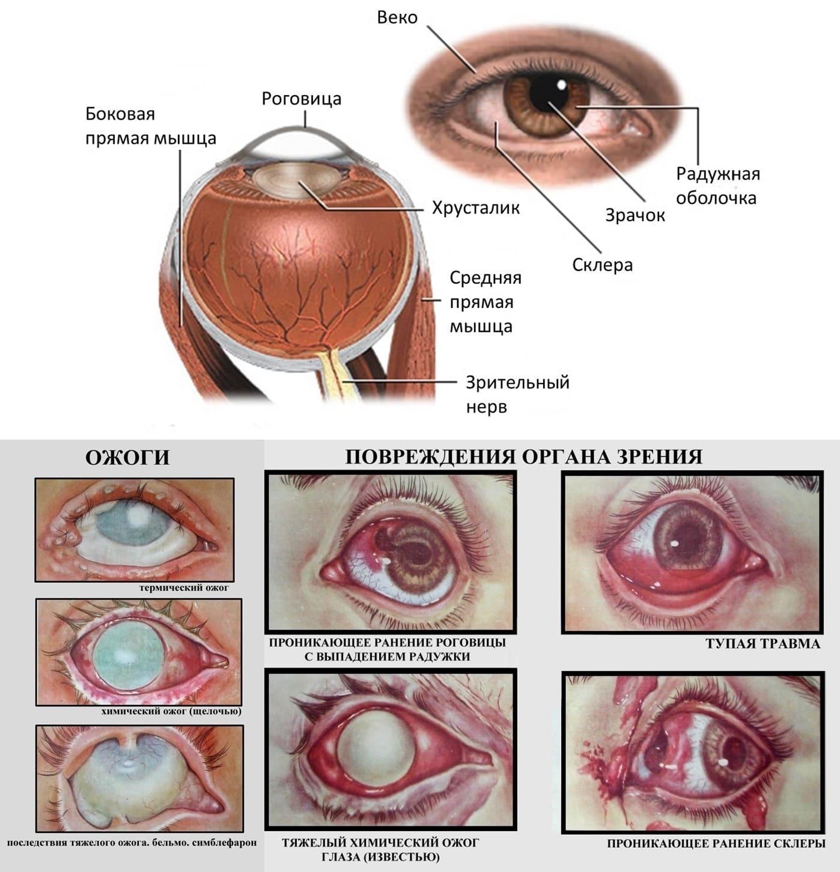 Доклад на тему травма глаза 163