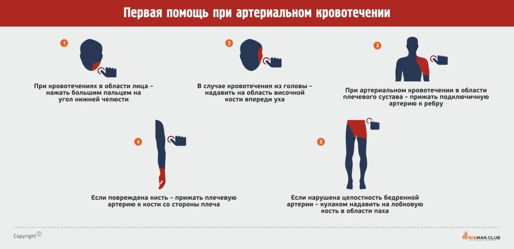 Доврачебная помощь при артериальном кровотечении